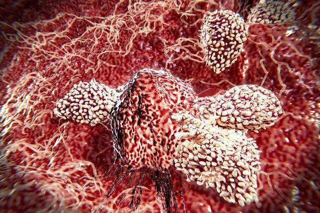 سلول های ایمنی چگونه از خود در برابر تومور سرطانی محافظت می کنند؟